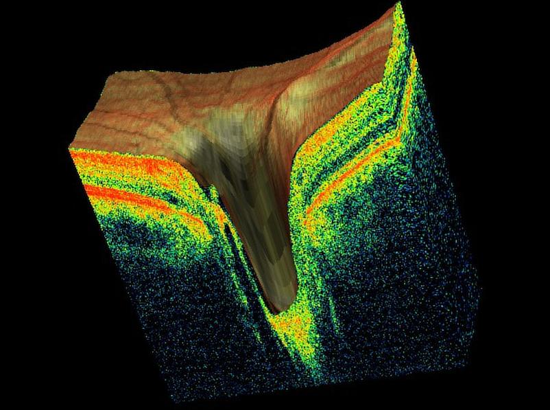 4d Scan oct eye scan glaucoma diabetes london